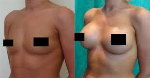 boob augmentation