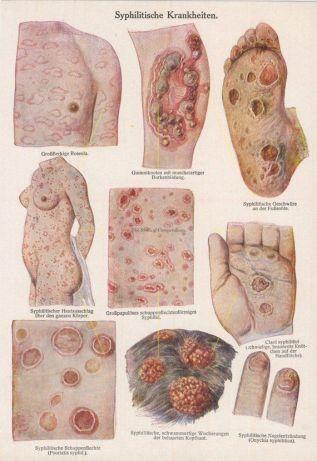 venereal disease